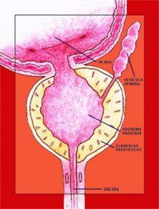 cicatrización después de la cirugía de resección de próstata
