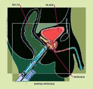 problemas de próstata de a quién irá