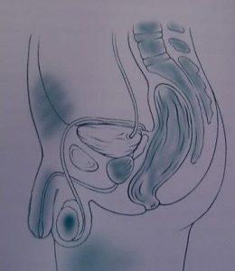 síntomas de prostatitis curados