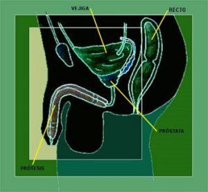 disfunción eréctil después de la cistoscopia